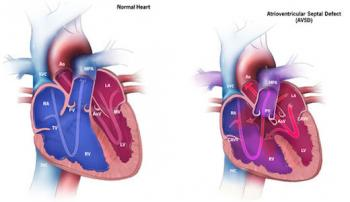 An atrioventricular septal defect (AVSD)