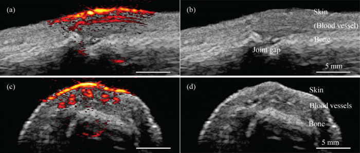 [Photoacoustic/ultrasound images taken with the new system]