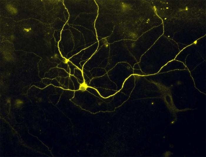 [Human Pain Receptor Neurons Developed from Fibroblasts]