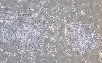 induced pluripotent stem cells from the skin cells of patients with Wolfram syndrome]