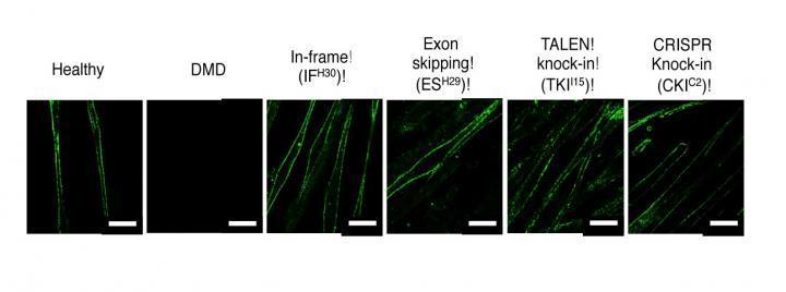[DMD-iPSCs Derived Skeletal Cells