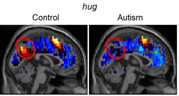 [Brain Representations of Social Thoughts Accurately Predict Autism Diagnosis]