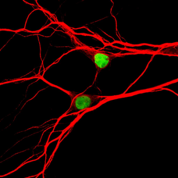 [Neurons expressing the Topoisomerase-1 gene]
