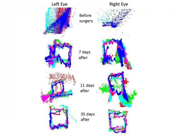 Series of images showing tracking of eye movement over time after a brain injury