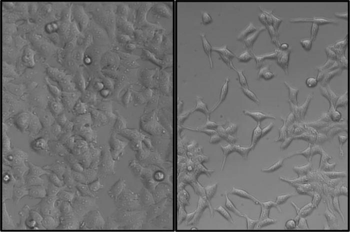 [MCF-7 Cells]