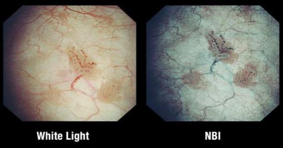 NBI vs white light