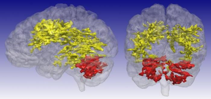 MRI of Bipolar Brain (image)