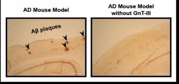 Immunostaining of A? Plaques in Mice with and without the Critical Enzyme
