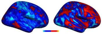 Researchers Discover 'Idiosyncratic' Brain Patterns in Autism