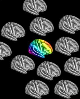 Autistic Brains