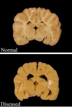 Pelizaeus Merzbacher Disease in Brain
