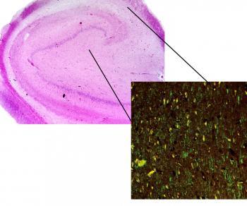 Surgical Specimen of an Antiepileptic-Resistant Patient