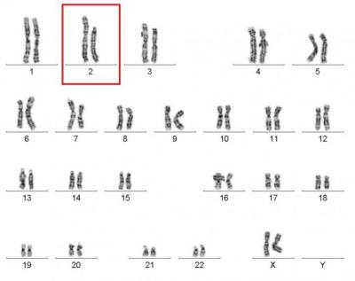46 Chromosomes of the Cured WHIM Syndrome Patient