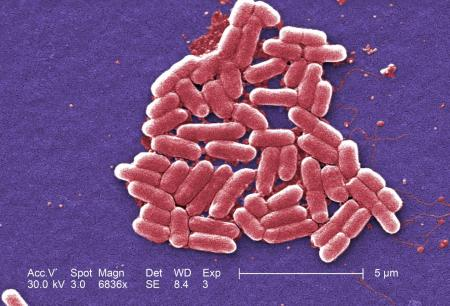 E. coli under a Scanning Electron Microscope