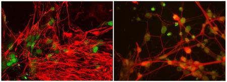 New ALS Gene and Signaling Pathways Identified