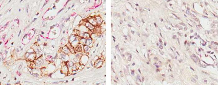 IL-17B and Pancreatic Cancer