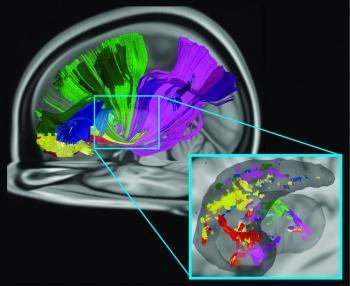 Several Brain Areas Communicate