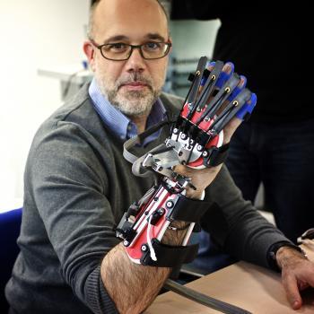 The glove device on Mr Alfredo Cesario