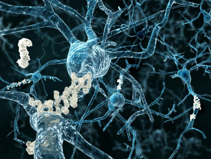 Beta-amyloid plaques
