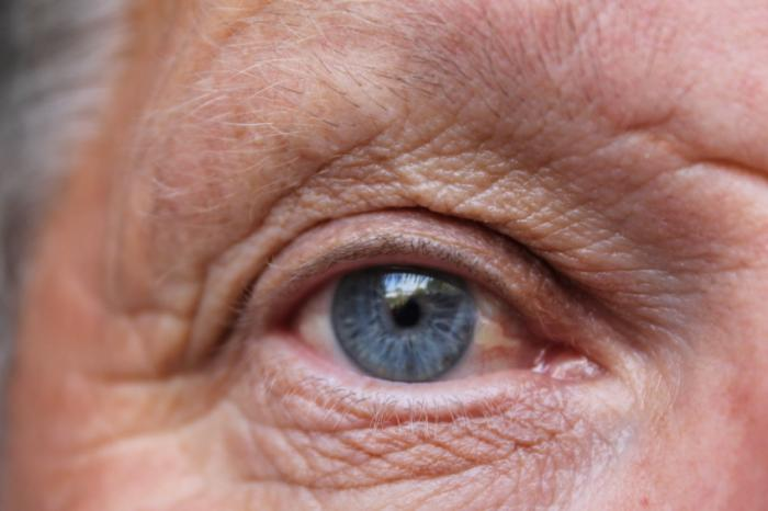 Treatment That Slows Amd Vision Loss With One Stem Cell