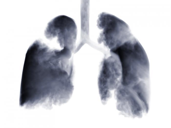 Melanoma Drug Shows Promise For Treating Advanced Lung