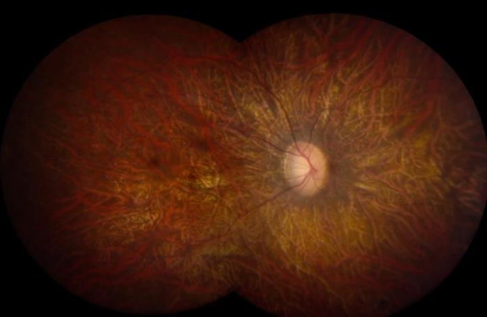 Leber Congenital Amaurosis Retina