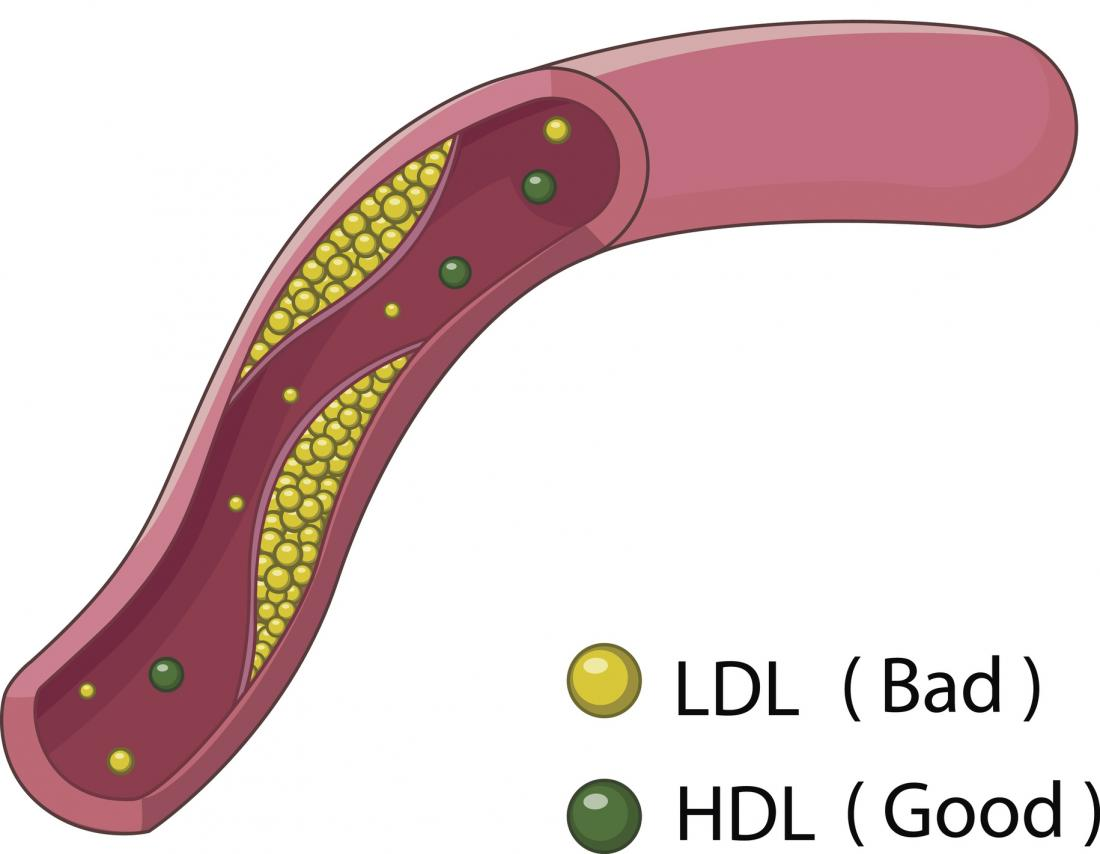 hdl and ldl cholesterol pdf